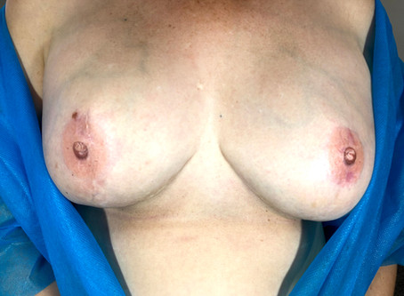 Blog Post - Free the Nipple