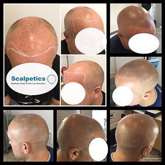 going bald alopecia male and female pattern baldness UK london hertfordshire