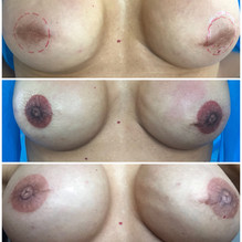 3d nipple tattoo, before after and healed