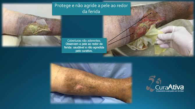 A pele ao redor da ferida