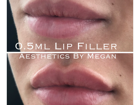 12 Things To Know Before Lip Fillers