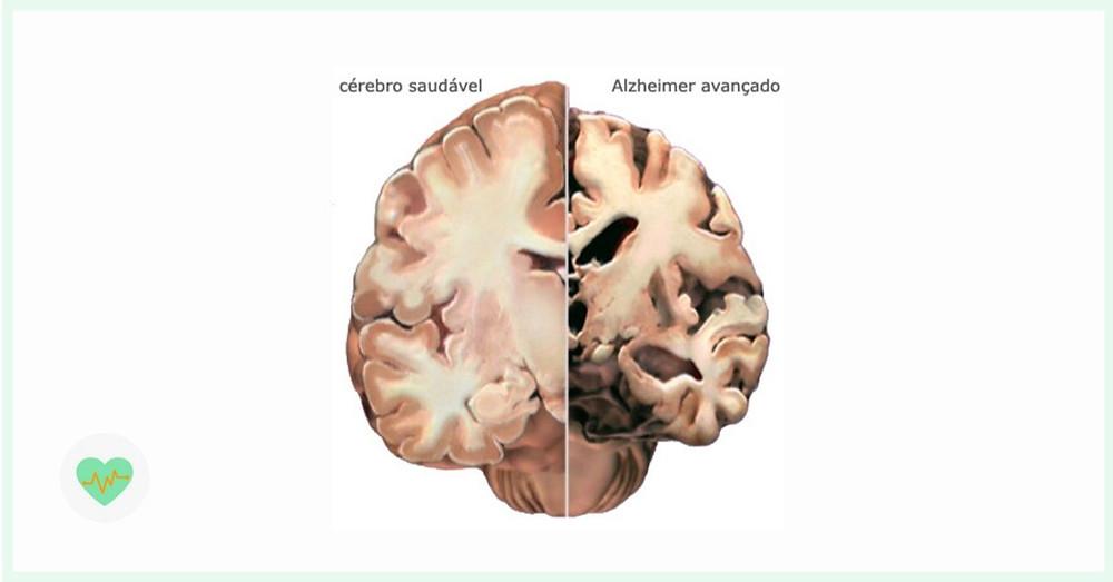 Comparativo de cérebro saudável e cérebro com doença de Alzheimer