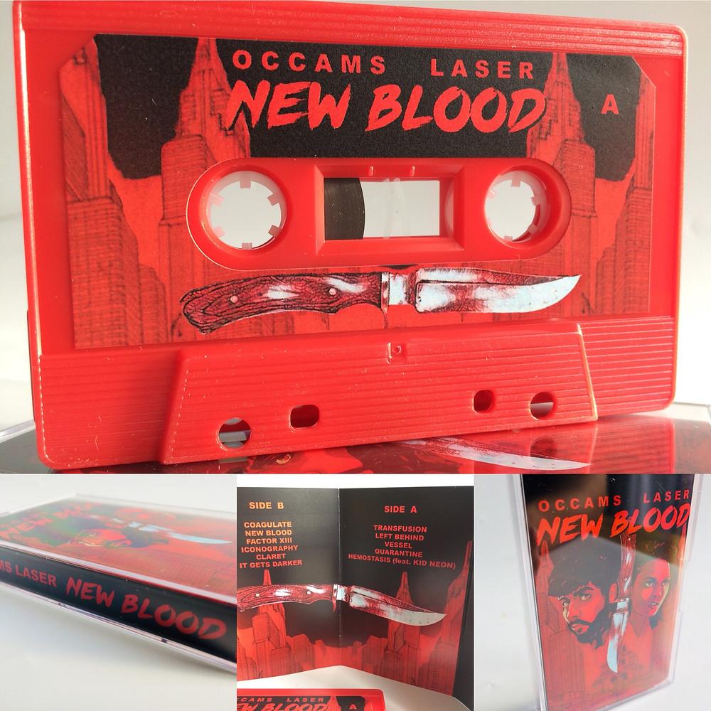 Cassette Stickered Shell