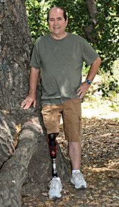 Robert Poirier, an above knee amputee, is pictured standing outside on some leaves by a tree wearing his prosthetic leg.
