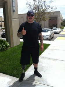 Anthony, a Below Knee Amputee, is standing outside of the old SCP building with his artificial leg (prosthetic).