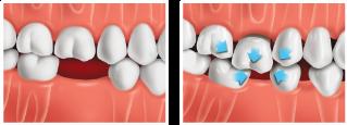 drifting-teeth.png