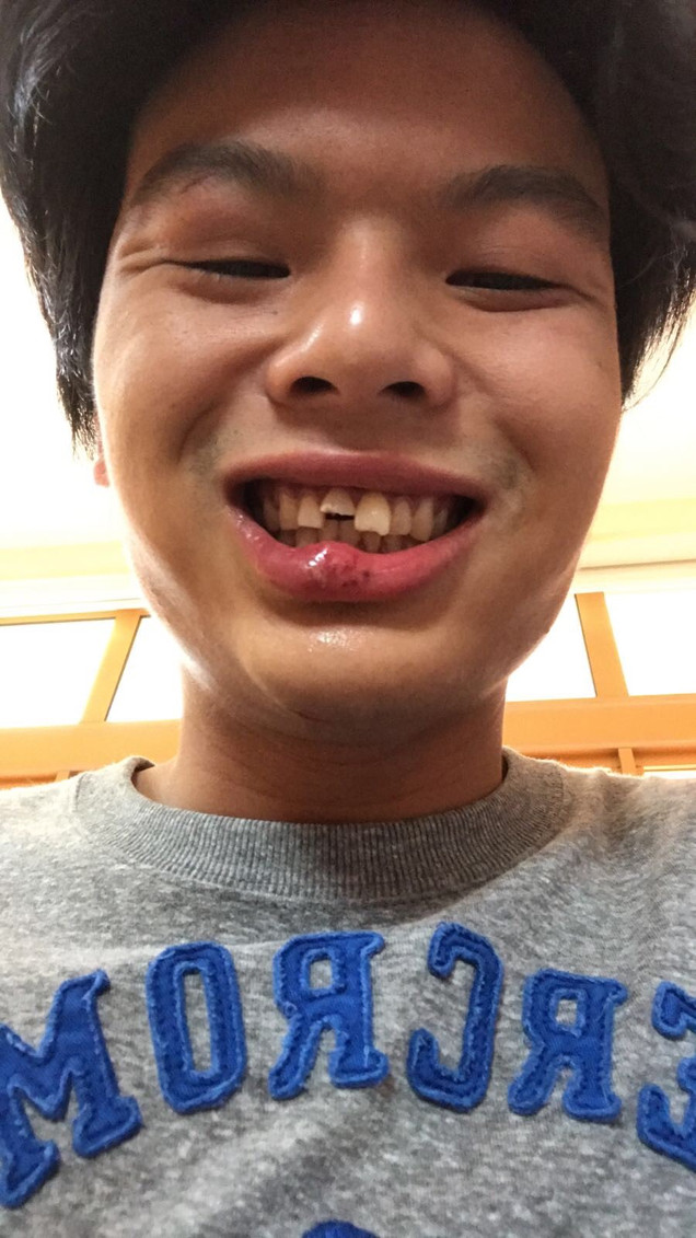 BREAKING NEWS: Joshua Chin Breaks His Tooth