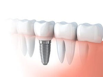 dental-implant.jpg