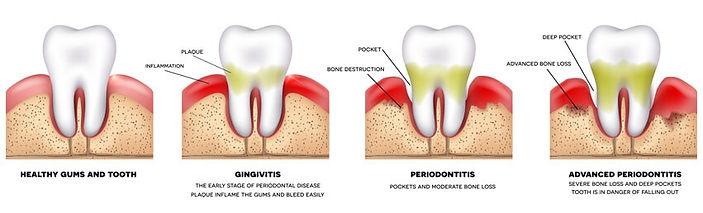 Gum-Disease-treatment-img-1.jpg