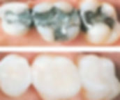 white-fillings-1-1.jpg