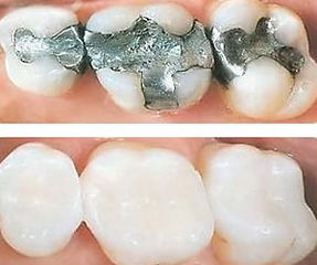 white-fillings-1-1.jpg