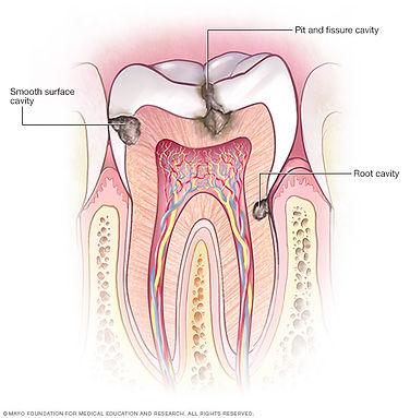 prevent-cavities.jpg
