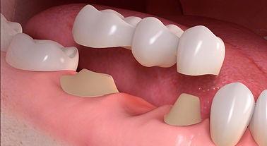 dental_bridge_sm.jpg