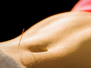Acupuncture Restores Fertility