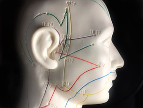 Acupuncture Cuts Migraine Severity
