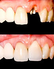 Vollkeramikkrone auf wurzelkanalbehandeltem Zahn