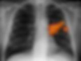 Ακτινογραφία θώρακος καρκίνος