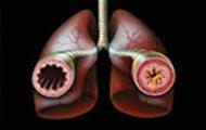 βρογχικό άσθμα