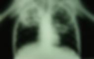 Ακτινογραφία θώρακος: ακτινιλογικά ευρήματα συμβατά με πνευμονική φυματίωση