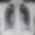 Σαρκοείδωση-ακτινογραφία θώρακος