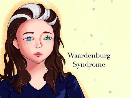 Waardenburg Syndrome: A Rare Pigment Condition