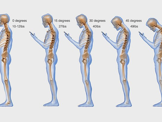 Fixing Your Forward Head Posture