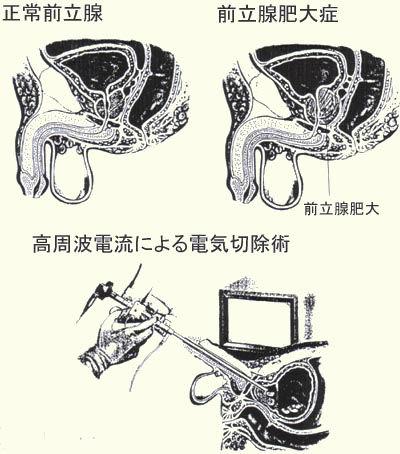 前立腺肥大症Ⅰ.jpg