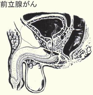 前立腺がんの検査.jpg