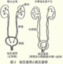 排尿時の膀胱内の圧力2.jpg