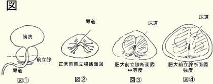 前立腺肥大症Ⅱ.jpg