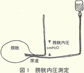 排尿時の膀胱内の圧力1.jpg