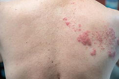 Canva - Shingles (Disease), Herpes zoste