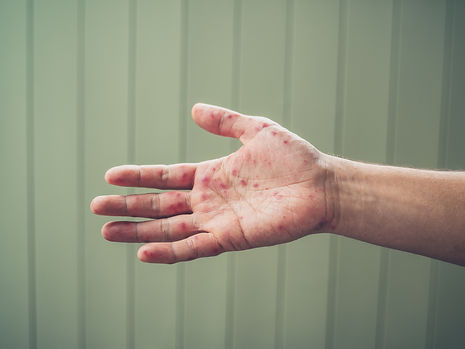 Canva - Hand Foot and Mouth Disease.jpg