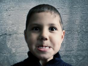 Co mamy zrobić, aby nasze dziecko przestało gryźć ludzi? Ugryźć je też!?