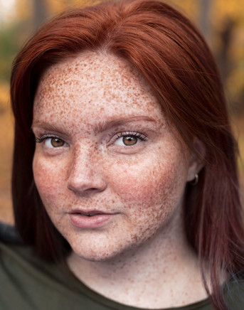 Freckles #2