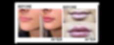 lip fillers2.png