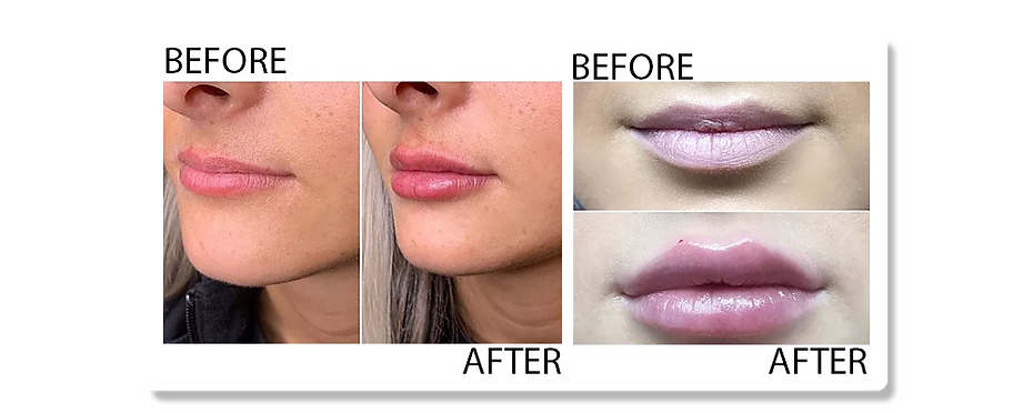 lip fillers2.png