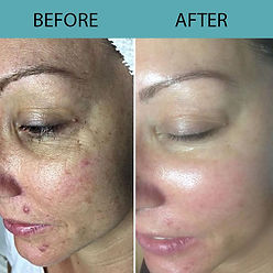 Microneedling with the FDA Cleared SkinPen