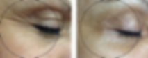 oxygeneo-before-after-2.webp