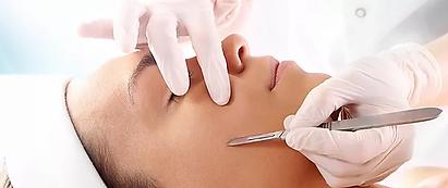 microneedling facial