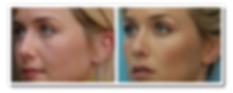 volumizing injectables.png