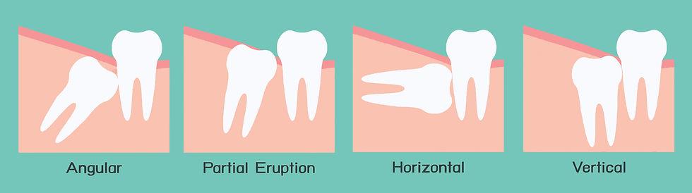 Wisdom Tooth Surgery