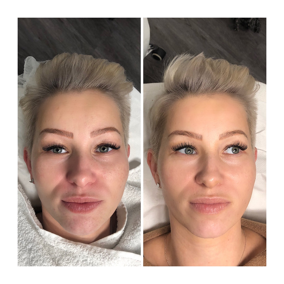 Beautystudio, HydroFacel, Cellulitesbehandlung, 3D HIFU, Permanent Make-Up, Microblading, BB Glow, Lashes, Wimpernverlängerung, Wimperverdichtung, Microneedling, Zahnbleaching, Plasma Pen, Microhaar Pigmentierung, Schulungen, Kosmetikinstitut, Hamburg