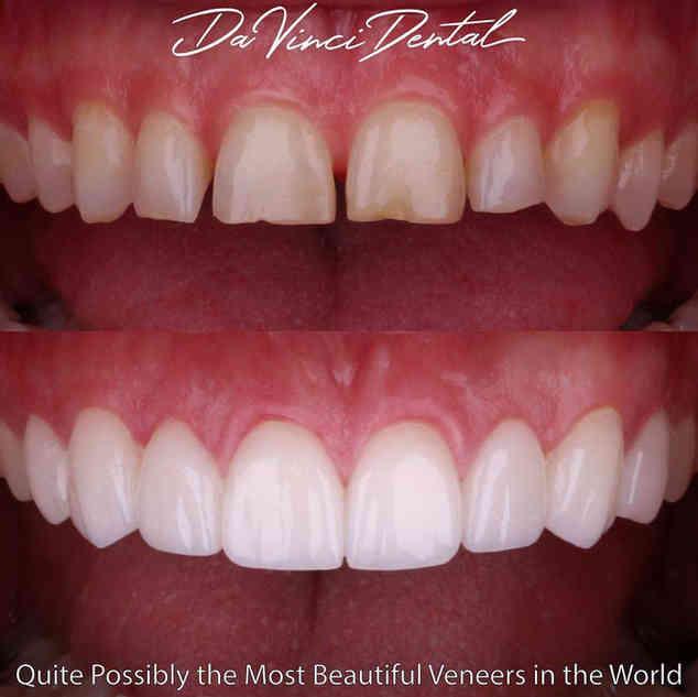 Bellevue Smile Dentist.jpg