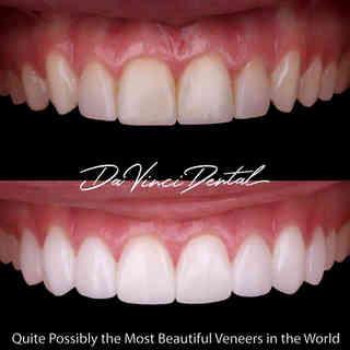 Bellevue Cosmetic Dentistry.jpg