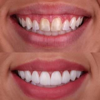 DentistinBellevue.jpg