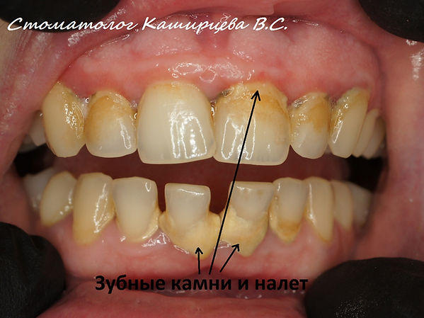 Зубные отложения.jpg