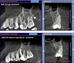 Лечение каналов 2.6 зуба