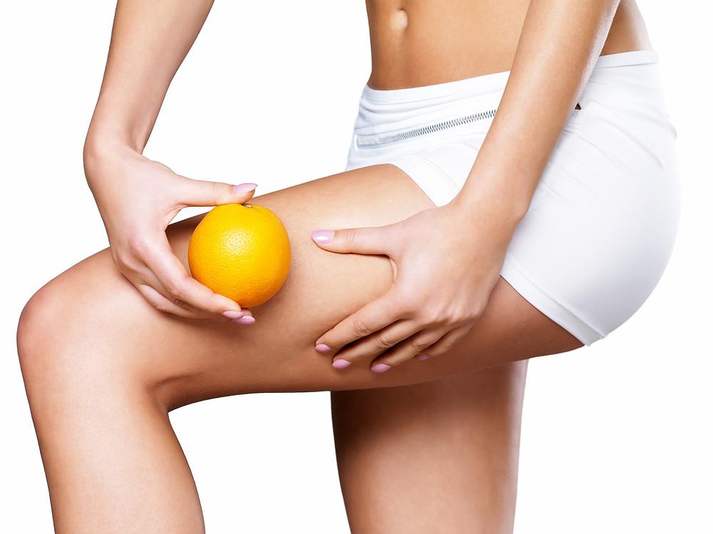 Cellulite Skin On Her Legs.jpg