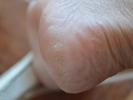 Como cuidar dos pés ressecados?